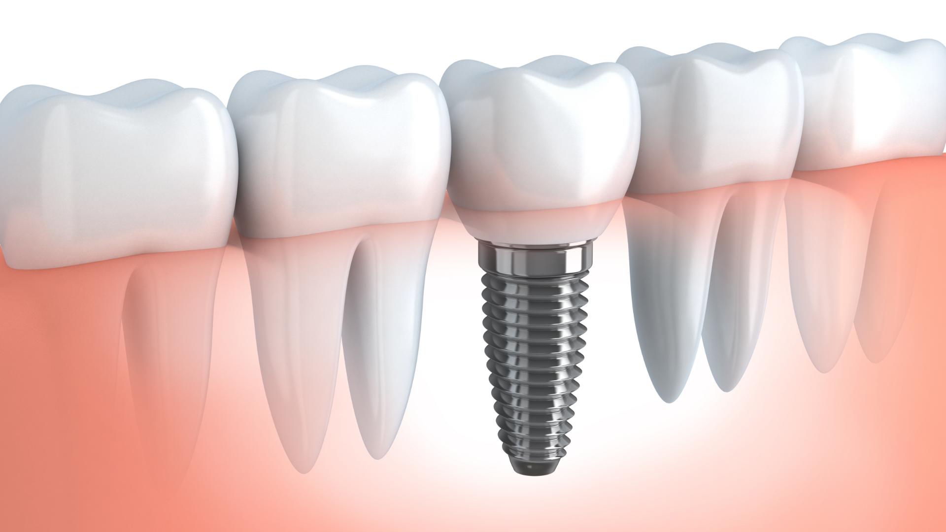 Implantologia dentale: tutto ciò che c'è da sapere