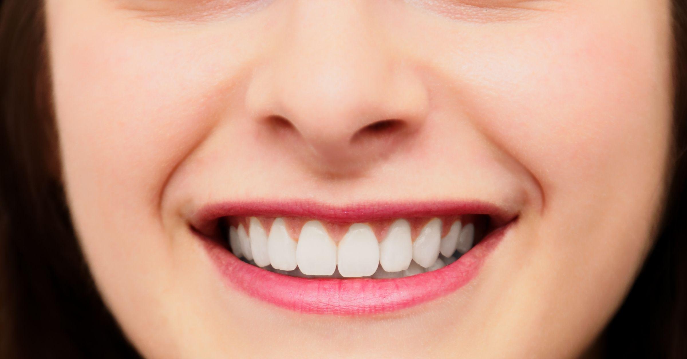 Faccette dentali: informazioni utili e vantaggi